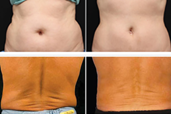 Freezefatforeversfl_ba_coolsculpting