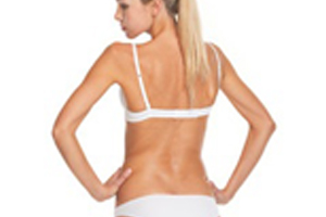 freezefatforeversfl_coolsculpting_back